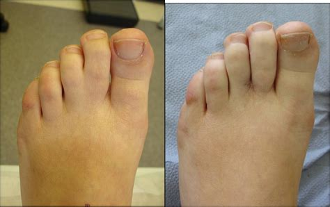 From To Toe cosmetic foot surgery harley 0207 870 1076