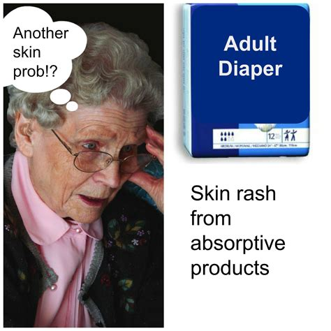 Elderly Skin Conditions Series Incontinence Associated