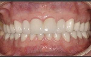 Full Mouth All Ceramic Crowns - Teeth  Male