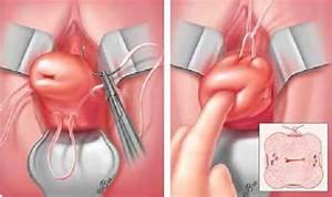 Геморрой кровяные выделения лечение