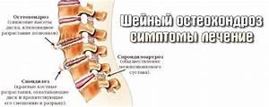 Лечение остеохондрозе отзывы
