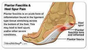 Plantar Fasciitis Therapy Wrap Heel Arch Support Pain