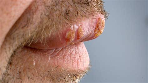 herpes infektion ursachen symptome und behandlung