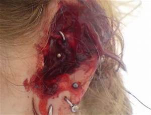 Why You Don't Want an Infected Ear Piercing | InkDoneRight