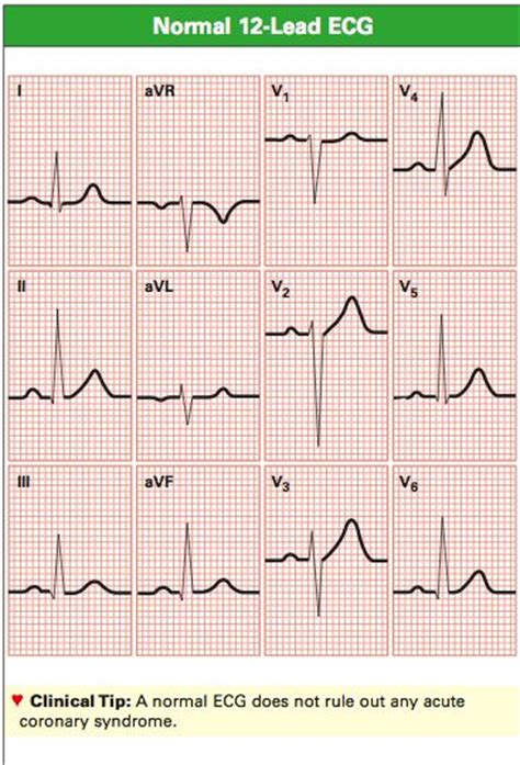normal  lead ecg complexes ecg teaching resources