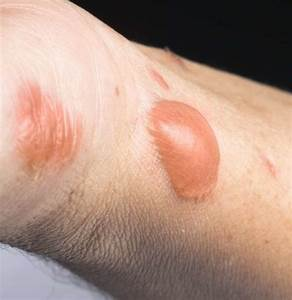 Burn, Scars, Treatment, Removal, And, Prevention