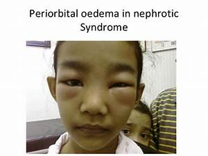 The gallery for --> Periorbital Edema Nephrotic Syndrome