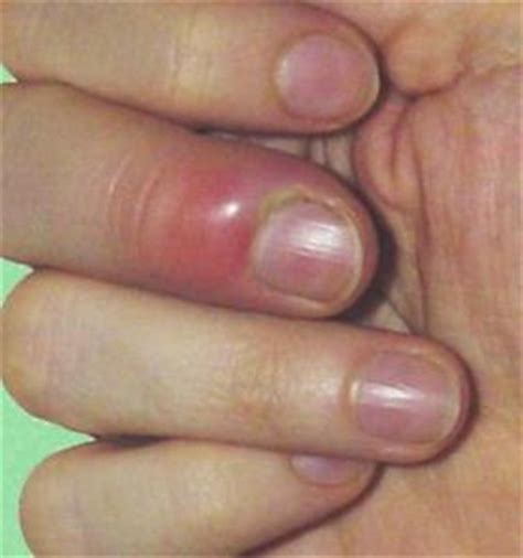 Infected Fingernail Bed by Athletic 321 Gt Gt Flashcards Gt Gm