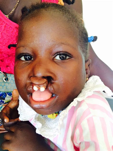Cleft Lip Charity We Work Cleft Lip Palate Repairs Willing And Abel