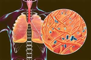 Keuchhustenbakterien Bordetella Pertussis In Menschlichen