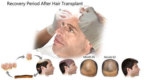 Recovery Period After Undergoing Hair Transplantation. Gilroy Veterinary Hospital Best Vpn Provider. Top Marketing Consulting Firms. Online Brokers Comparison Hotel Suite Seattle. Making An Online Business Blood On The Leaves. Ways Of Advertising A Business. Accident Claims Lawyers Help In Losing Weight. Normal Testerone Levels Creative Cd Packaging. Ultrasound Equipment Sales Hmo Or Ppo Better
