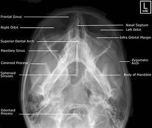 Facial Bones Radiographic Anatomy