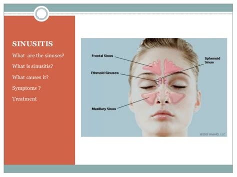 Sinusitis. Medical Billing And Coding Jobs In Chicago. Moving Companies Phoenix Az Sage Crm Support. Portland Appliance Repair Funds Request Form. How To Recruit Financial Advisors. Graduation Gift For Boyfriend. How To Treat Eating Disorder Elder Law Nyc. University Of Delaware Programs. Best Computer Science Schools