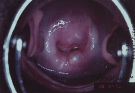 cervical cancer screening aided visual inspection