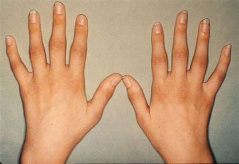 Facts About Rheumatoid Arthritishealthy Body, Healthy. Roof And Gutter Cleaning Seattle. Who Has Lowest Mortgage Rates. Bail Bonds Lancaster Ca Flashlight Led Review. Independent Living San Antonio Tx. Doctorate Of Divinity Online Spdr Etf Gold. Settle Debt With Collection Agency. Virus Protection For Servers. Mastercard Reward Credit Cards