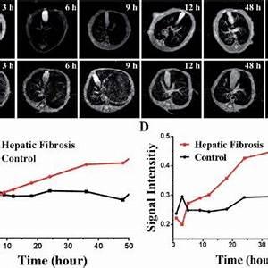 n vivo comparison of MRI of SPIO@SiO 2-ICG-RGD for ...
