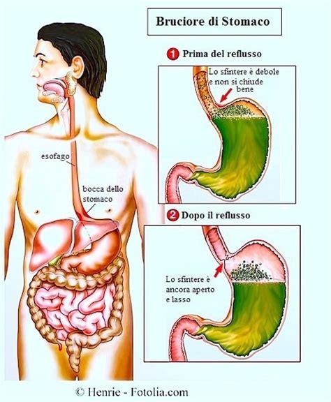 alimentazione per esofagite da reflusso esofagite da reflusso o eosinofila cause sintomi cura