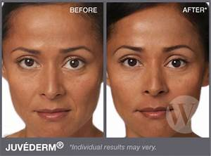juvederm injections under eyes before and after