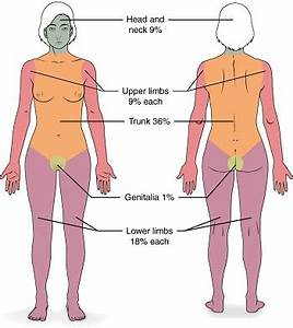 Burn Percentage Chart Rule Of 9 Third Degree Burns Symptoms Treatment Healing Stages