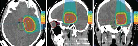 Proton Radiotherapy by Proton Radiotherapy Applied With Two Hirizontal Beams For