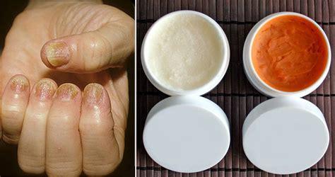 tratamientos  la psoriasis en las unas