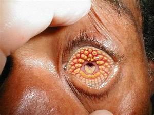 HijauTek-Yusran: Lamprey Disease, A Serious Disease That