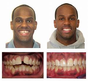 Invisalign Before & Afters - Millburn NJ | Millburn ...