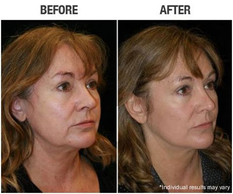 mini neck lift before after