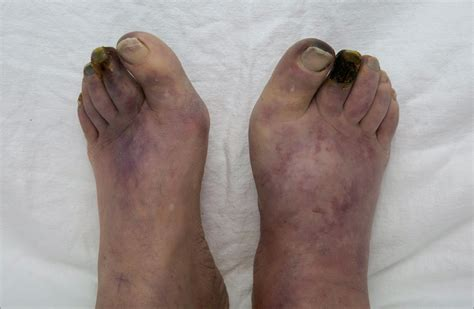Bilateral Foot Gangrene | Cardiology | JAMA Oncology