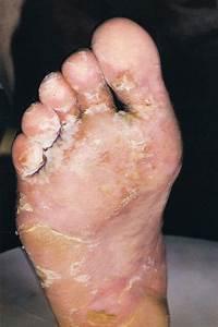 Керосин грибок стопы