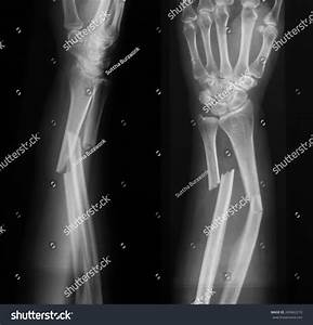 Xray Image Broken Forearm Ap Lateral Stock Photo 269462210 ...