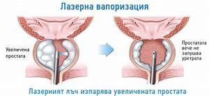 Лечение аденомы в алан клиник