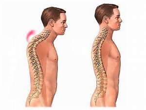 Лечение остеохондроза после операции поясничного отдела позвоночника