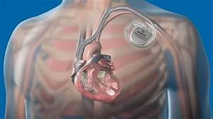 FDA Says Cybersecurity Vulnerabilities Found in Some Medtronic Devices…