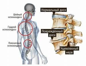 Остеохондроз пояснично крестового лечение