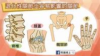 僵硬、疼痛,退化性關節炎怎麼辦?(懶人包) | 文章 | 運動筆記