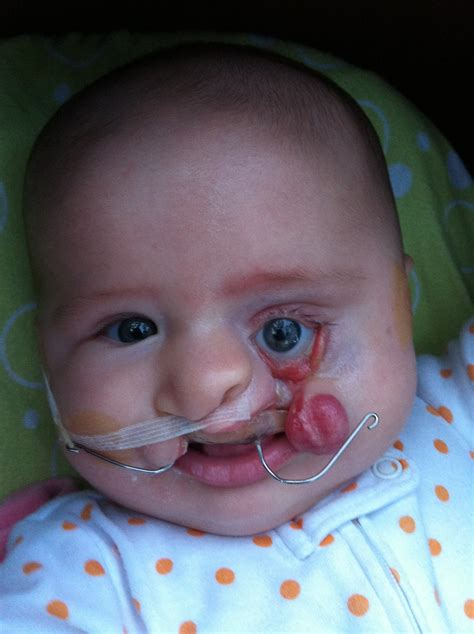 What Causes Cleft Palate Driverlayer Search Engine