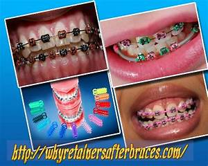 27 best Customized braces images on Pinterest | Braces ...