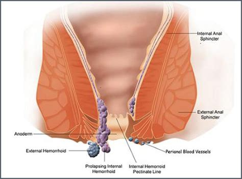 emorroidi interne sanguinanti rimedi sollievo rapido emorroidi 3 rimedi naturali deanet