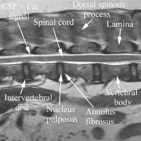 spinal cord acute  compressive nucleus pulposus