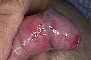 Лучшее средство для лечения простатита