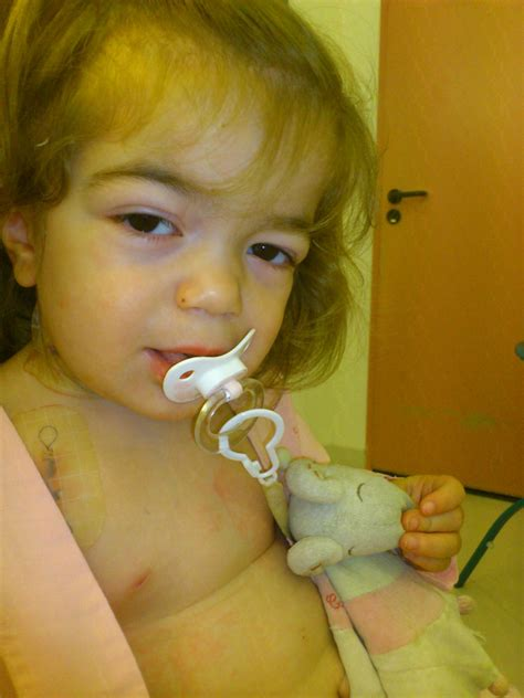 chambre implantable apres la pose de la chambre implantable le de