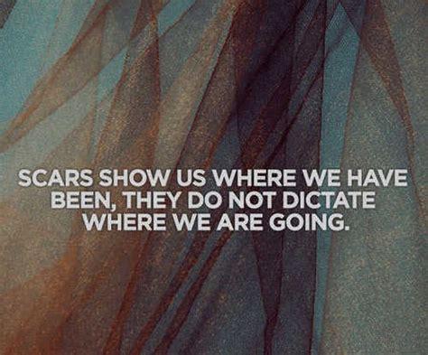 I Have Scars Quotes. Quotesgram