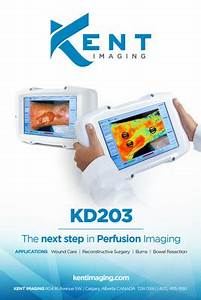 Kent Imaging's Breakthrough Medical Imaging Device ...