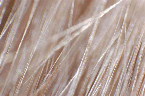 Rare Hair Disorders: Ringed Hair