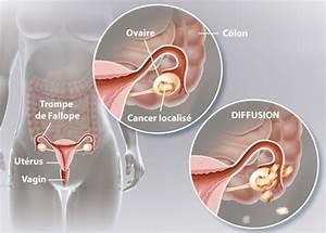 Savoir Si J Ai Le Permis : comment savoir si j ai un cancer de l ovaire ramsay g n rale de sant nos offres ~ Medecine-chirurgie-esthetiques.com Avis de Voitures