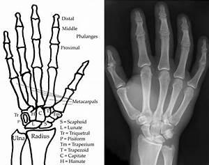 Skeletal Series Part 8  The Human Hand