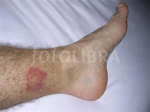 Insect Bites On Legs
