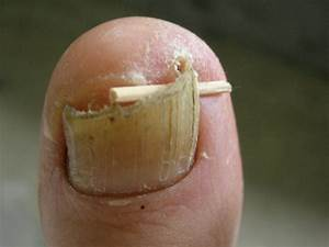 Ingrown Toenail - Treatment, Surgery, Removal, Infection ...