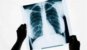 Algorithm Outdoes Radiologists At Spotting Pneumonia In X-rays